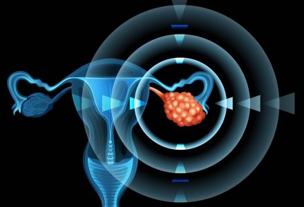 Why Ovarian Cancer is so Hard to Detect | ObGyn Clinic in Singapore | SMG Women's Health