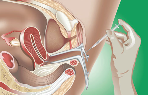 Intra-Uterine Insemination (IUI) Procedure SMG Women's Health
