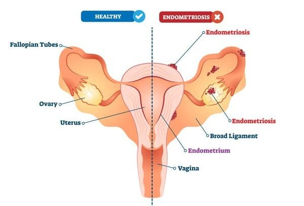 comparing a healthy uterus and the uterus of a lady with endometriosis