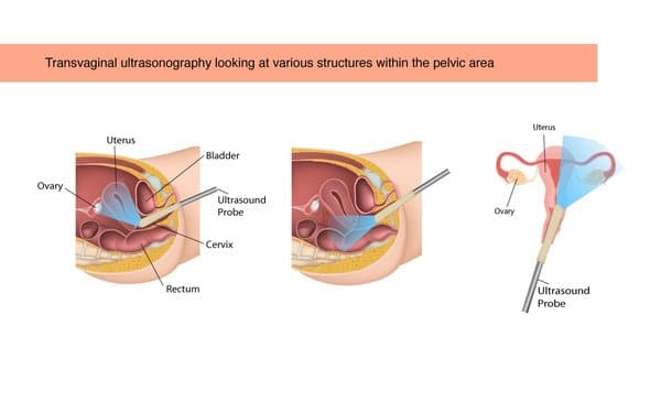 Transvaginal ultrasonography looking at various structures within the pelvic area